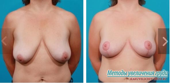 Увеличения груди липофилинг