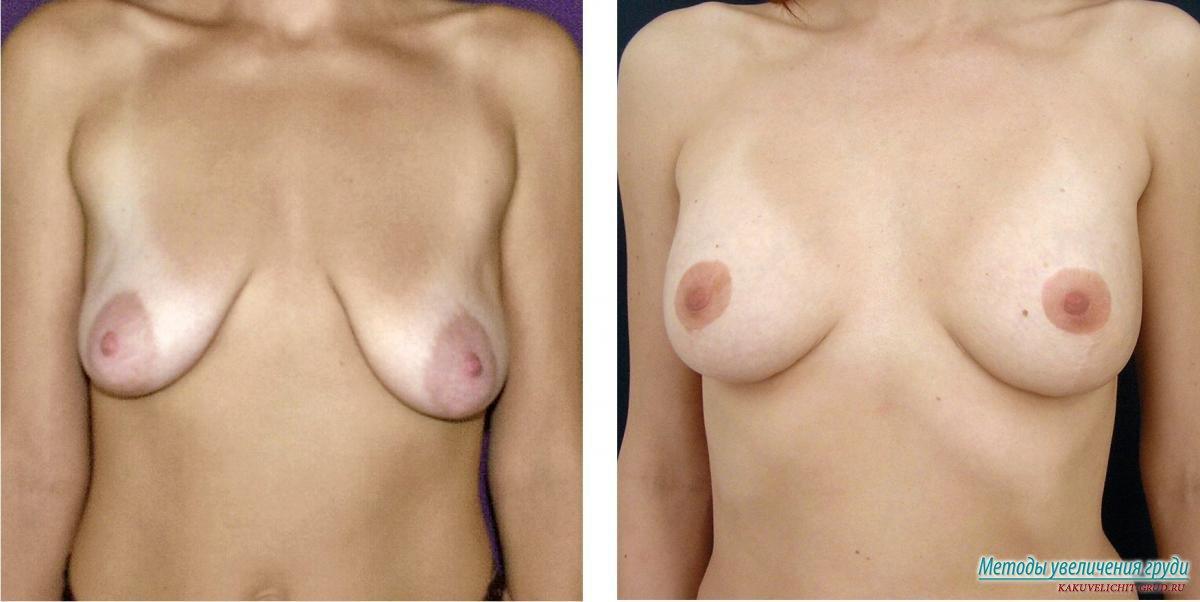 Гематома на груди после маммопластики