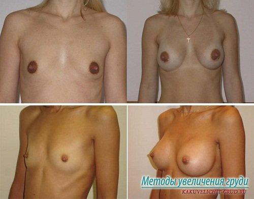 увеличить грудь фото до и после