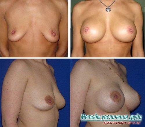 фото груди до и после увеличения