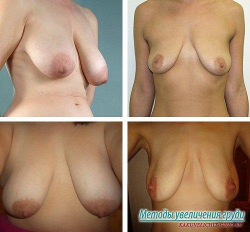 грудь после беременности фото
