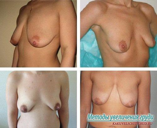 грудь после родов фото