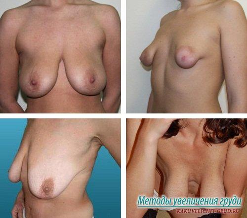 грудь после кормления фото
