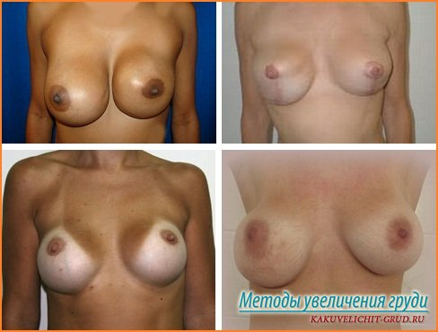неудачные операции по увеличению груди фото